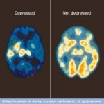 Mayo Clinic PET scan of normal and depressed brains